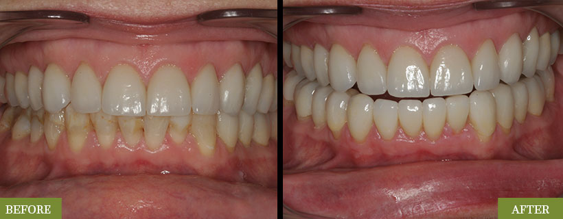 Lower Crowns